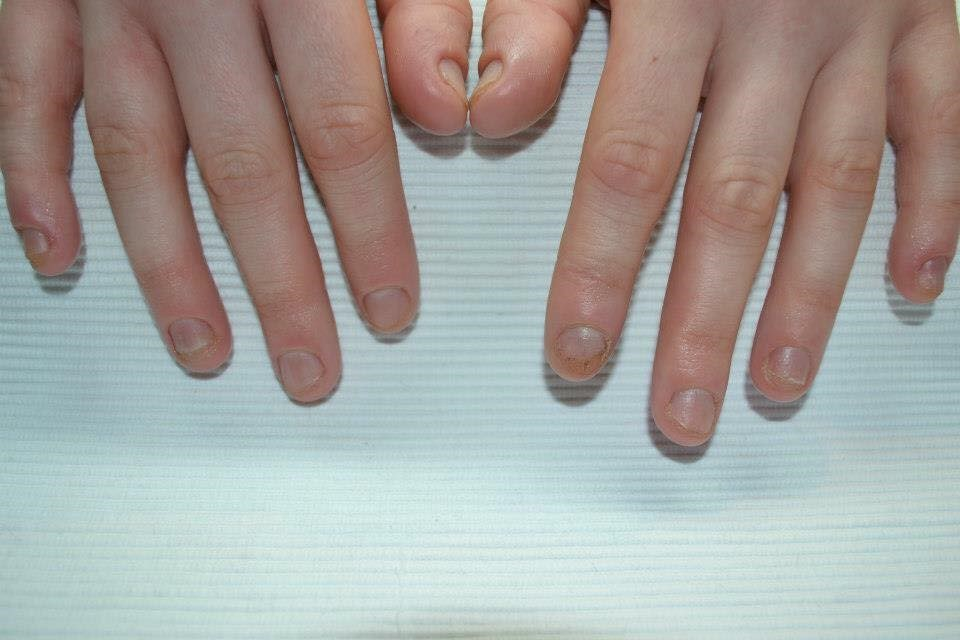 handen 6